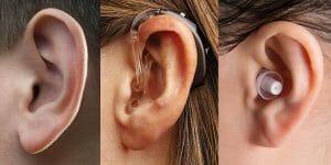Hearing Aid Product Portfolio